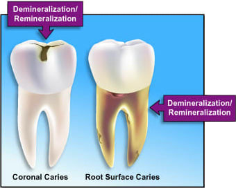 Illustration depicting demineralization and remineralization