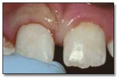 Image: Replantation of an avulsed tooth.