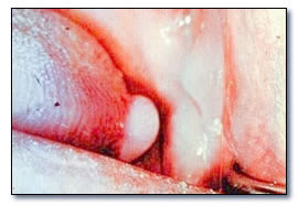 Lymphoepithelial cyst