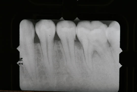 Radiographic calculus and bone loss