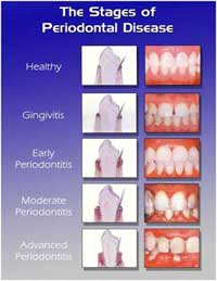 the-stages-of-periodontal-disease jpg