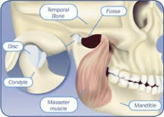 What is TMJ Disorder? – Tagalog language – Dental Care