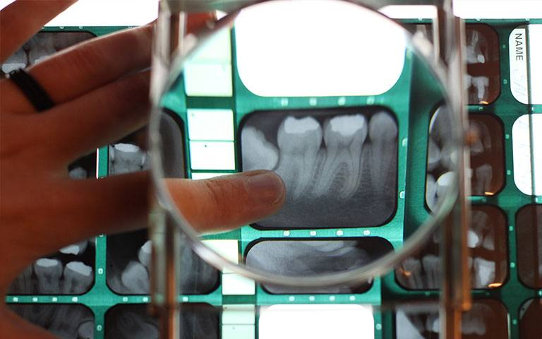 Photo of dental x-ray under a magnifying glass