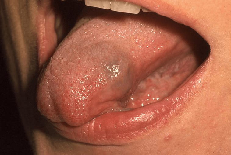 Bluish compressible non-tender mass of left anterior lateral tongue.