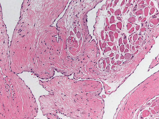 High-power microscopic image revealing ectatic intramuscular venous blood vessels lined by bland flattened endothelial cells.