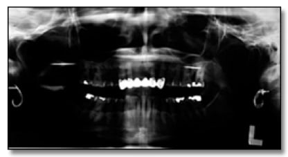 Example of an overexposed panoramic radiograph
