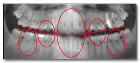 Features of the dentition to be compared in the assessment of panoramic anatomic accuracy