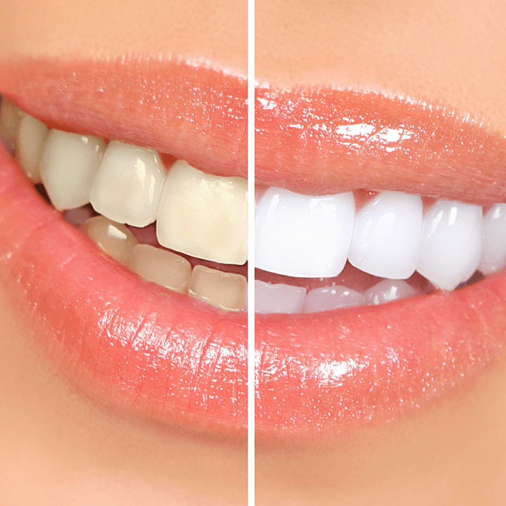 Whitening Research Smile
