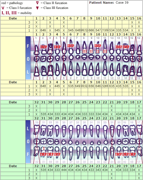 Periodontal Charting - case 39