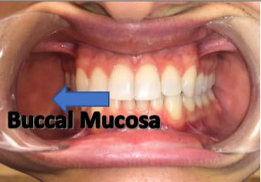 ce21-img05-buccal-surfaces