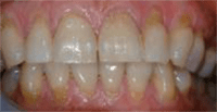 Photo of teeth with hard tissue loss involving 50% of surface area