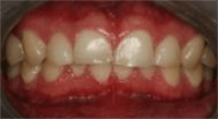 Photo of teeth with hard tissue loss involving greater than 50% of surface area