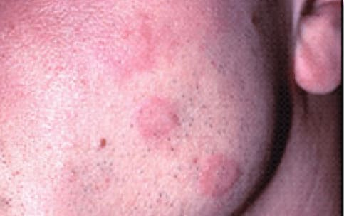 Photo of acute urticaria following the oral administration of penicillin.