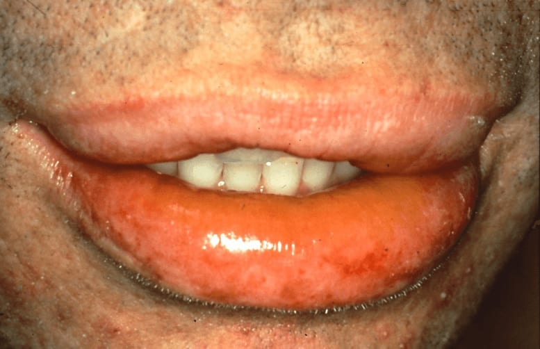 Photo of acute angioedema of the lips and oropharynx following the oral administration of penicillin.
