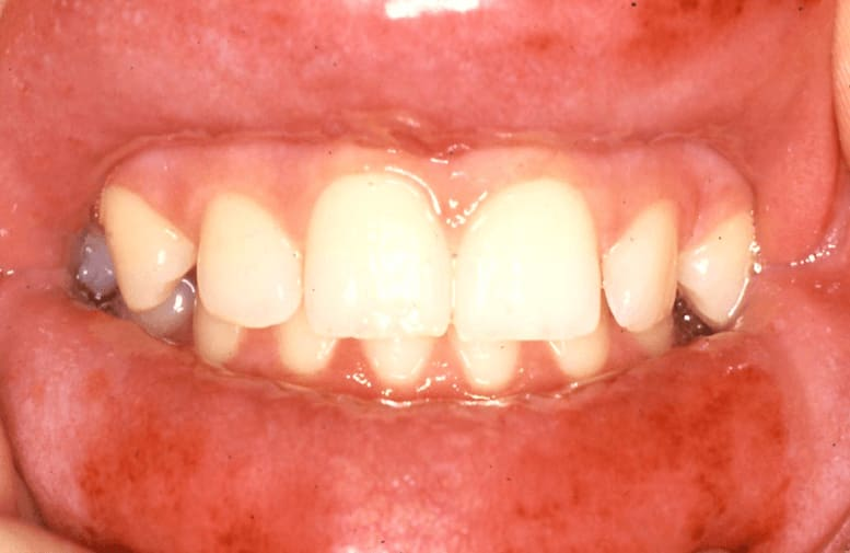 Photo of Type IV or delayed hypersensitivity reaction in response to a cinnamon-flavored sugar-free gum.
