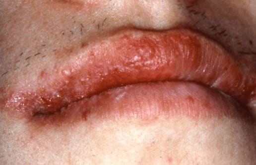 Photo of Type IV or delayed hypersensitivity reaction in response to an OTC lip balm containing benzocaine.