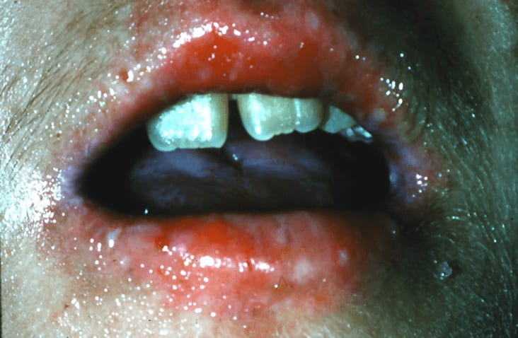 Photo of severe oral infection with candidal organisms in a patient undergoing immunotherapy prior to bone marrow transplantation.