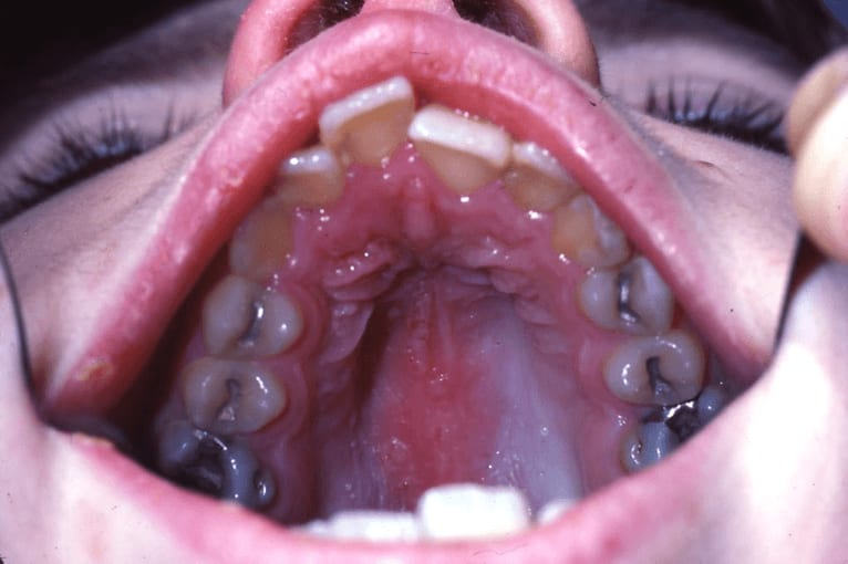 Photo of herpes zoster infection involving the maxillary and ophthalmic divisions of the trigeminal nerve secondary to the reactivation of the latent VZV in a patient with leukemia undergoing chemotherapy.