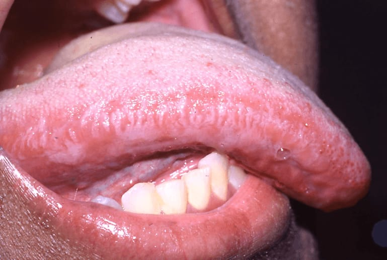 Photo of hairy leukoplakia secondary to the reactivation of the latent EBV in a patient on therapeutic immunosuppression following renal transplantation.