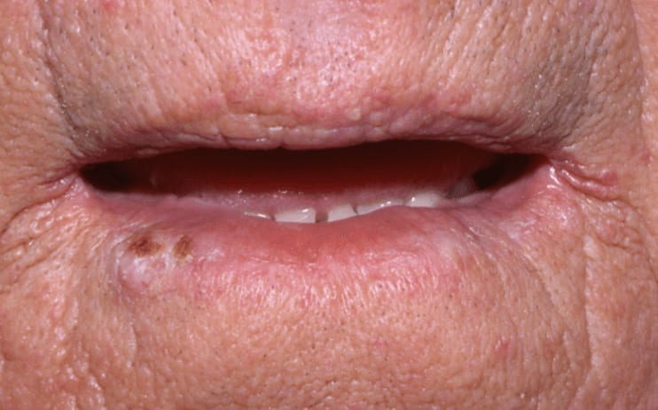 Photo of squamous cell carcinoma of the lip in a patient 2 years after renal transplantation.