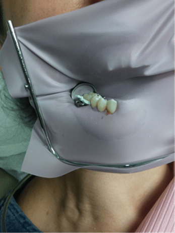 Figure 5 shows a rubber dam around tooth for amalgam removal