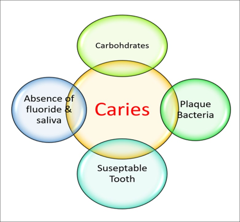 Diagram showing the factors in the dental caries process