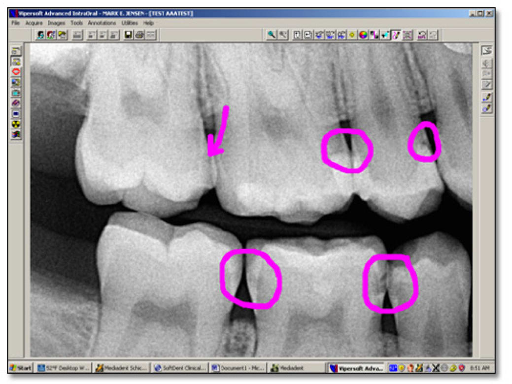 Software showing a digital bitewing radiograph with highlighted areas marked during a discussion with the patient