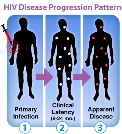 Image: HIV disease progression pattern.