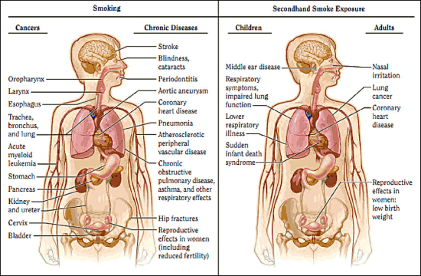 Image showing the health consequences linked to smoking and secondhand smoke.
