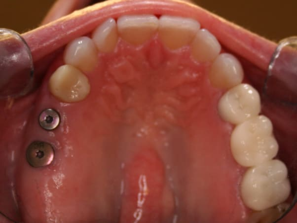 Photo showing dental implants.