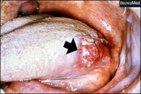 Photo showing squamous cell carcinoma of the tongue.