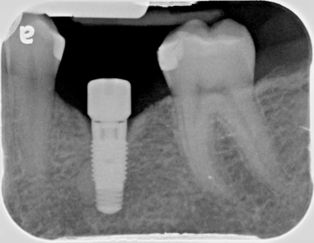 Photo showing an xray of dental implants.