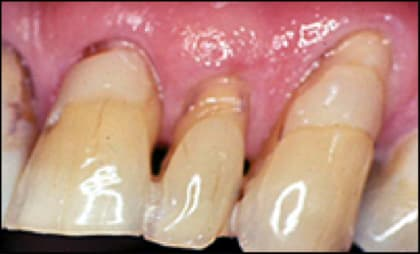 Photo showing exposed roots often present an oral hygiene problem.