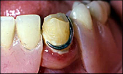 Photo showing limited access increases plaque retention.