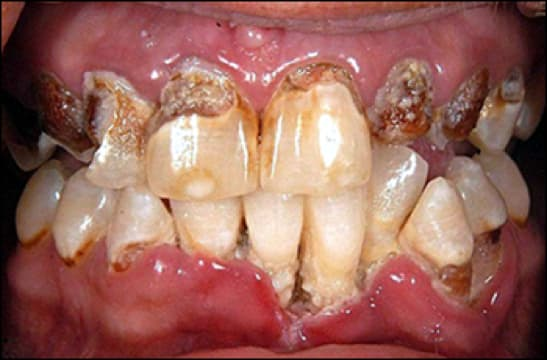 Image of METH mouth.