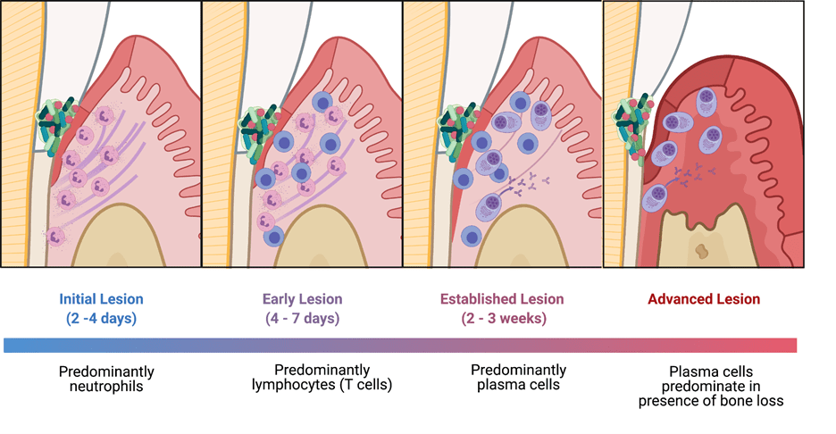 Image: Diagram of the process of activation results in proliferation and differentiation into Ig producing Plasma Cells.