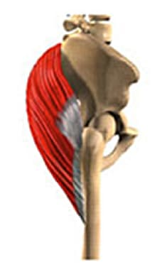 Image of gluteus maximus.