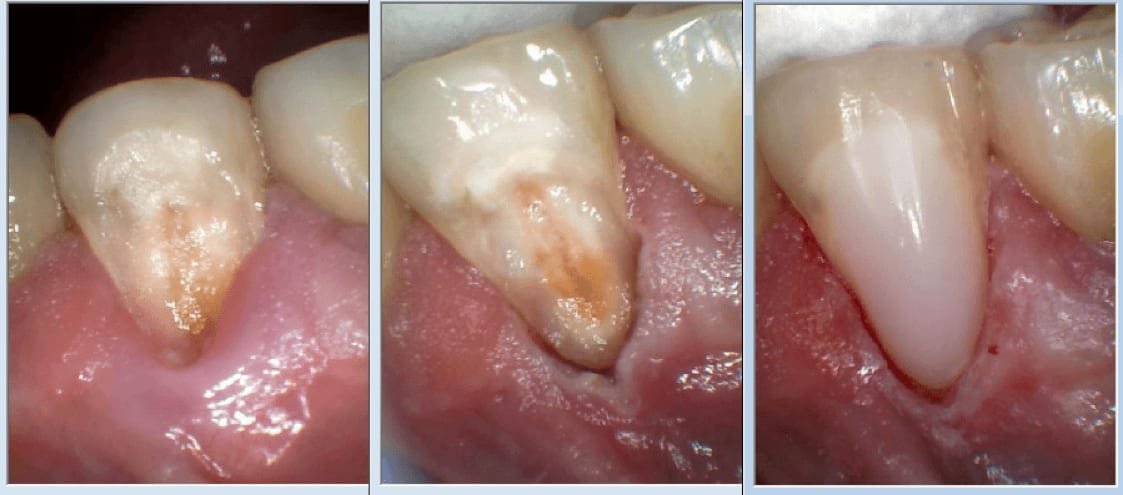 This image depicts Captek crowns cemented three weeks after gingivoplasty and gingivectomy.