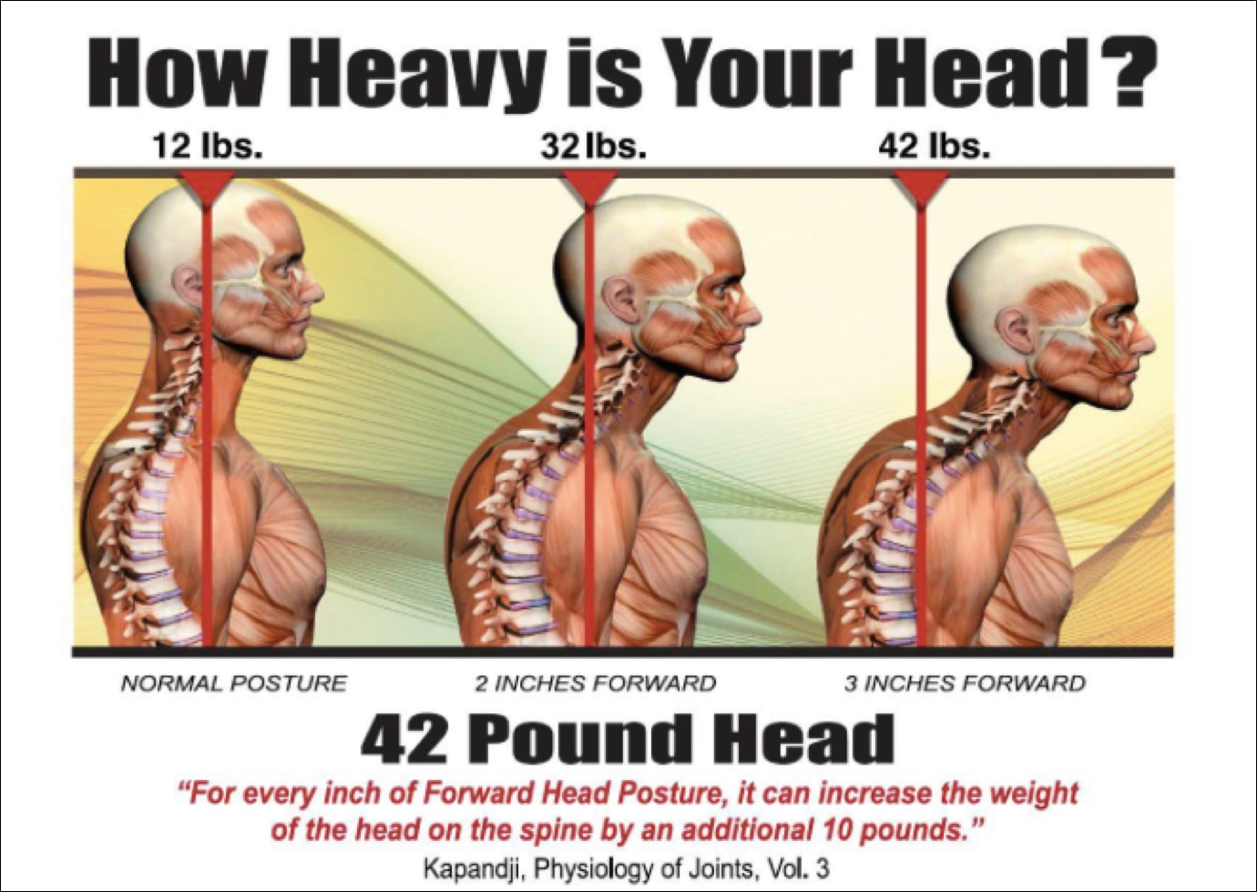 Image of forward head posture.