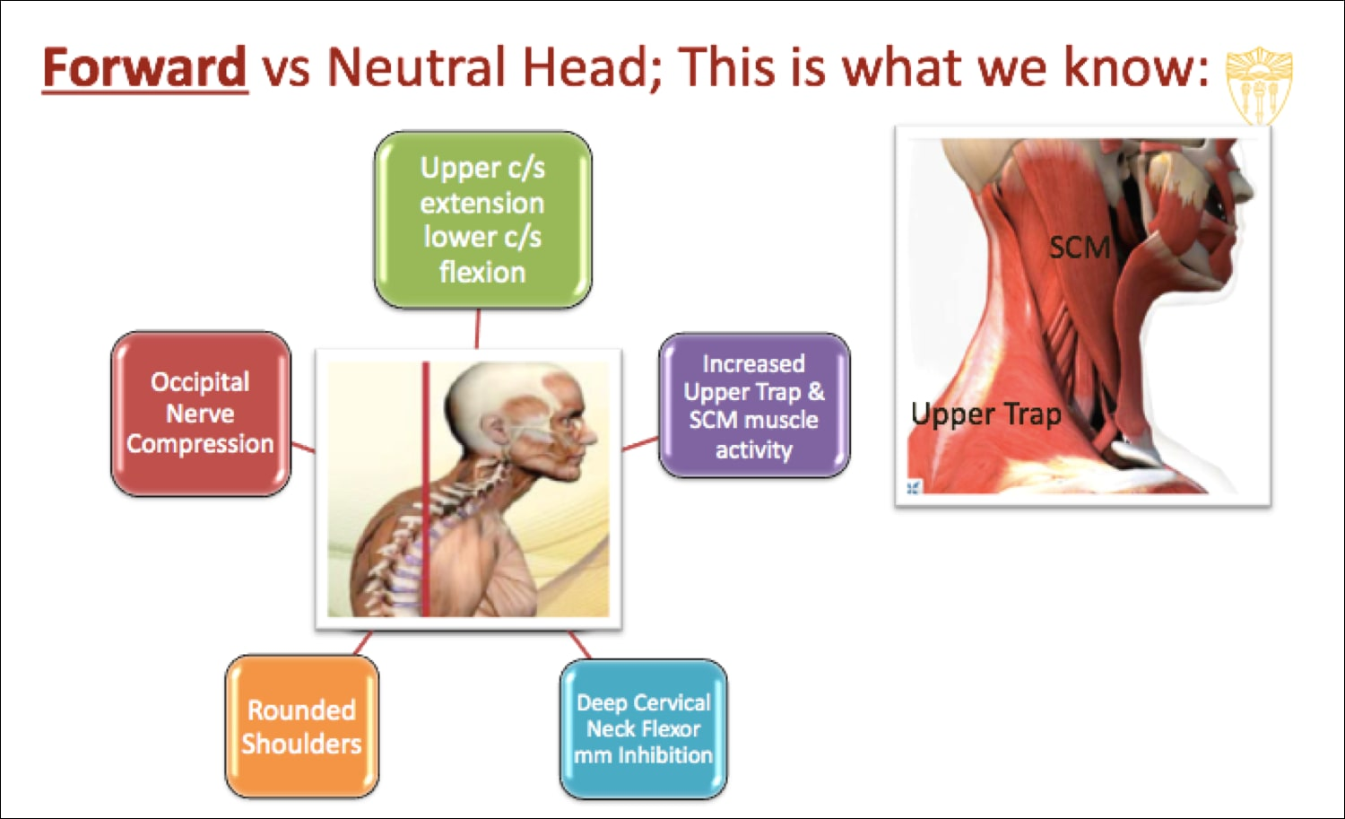 Image of consequences of the forward head posture.