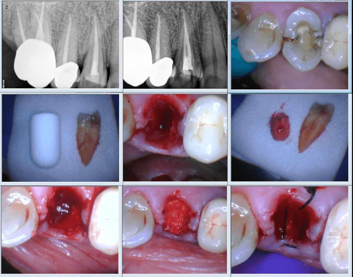 The Er:YAG allows for conservative removal of alveolar bone resulting in a minimmaly invasive extraction via elevation.