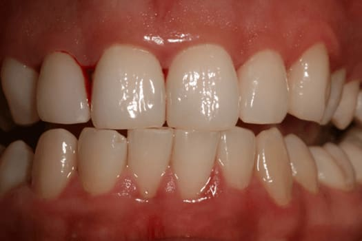 Showing gingival bleeding and areas of inflammation despite little place accumulation