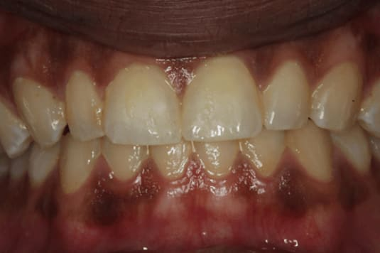 A representative depiction of the gingiva with despite subpar oral hygiene and visible plaque and doesn't show overt gingivitis symptoms.