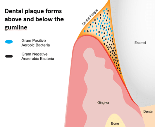 Illustration showing dental plaque forms above the gumline and in the gingival sulcus.