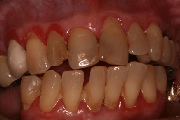 Photo showing recognizable signs of established gingivitis include red, edematous, bleeding gums.