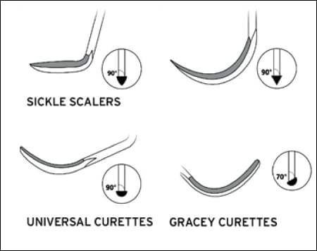 Figure 3 shows a variety of scaler tips and configurations