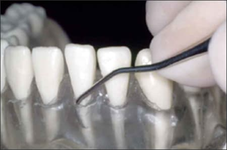 Figure 8 shows a model of teeth with translucent gums being probed by a dental instrument