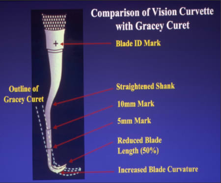 Comparison of Vision Curvette with Gracey Curet