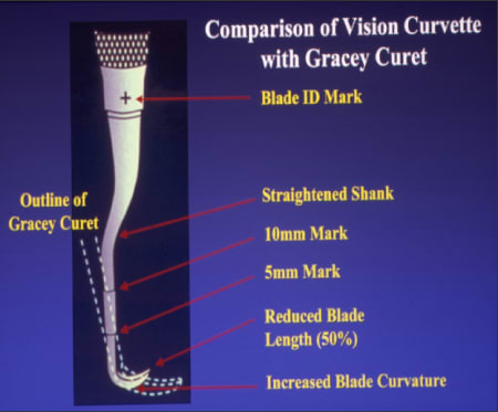 Figure 22 is a diagram comparing the Vision Curvette with the Gracey Curet