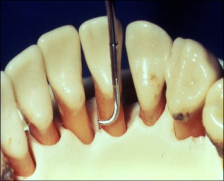 Figure 24 shows a close up of the back of the lower front teeth probed by a dental instrument